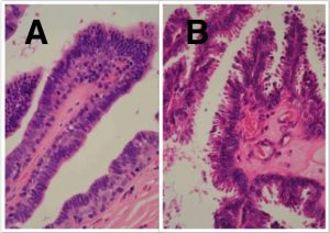Fig-4-15-Intraduct-papillary-lesions[1]