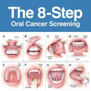 Oral-Cancer-Screening_large[1]